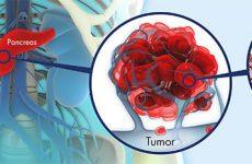 genetica pruebas de adn cancer PDL1 Genolife