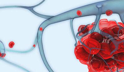 biopsia liquida genolife células circulantes tumorales CTCs